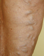 Vanish Vein and Laser Center Naples Florida