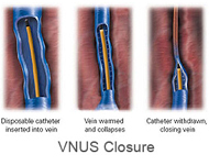VNUS Closure treatment for varicose veins