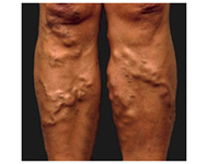 Varicose Veins Treatments Legs