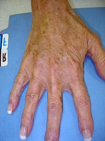 Vanish Vein Laser Center Naples Florida Hand Vein Treatment