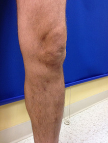 laser ablation of severe varicose veins