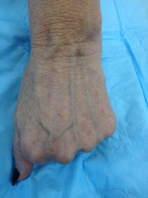 Vanish Vein Hand Vein Treatment