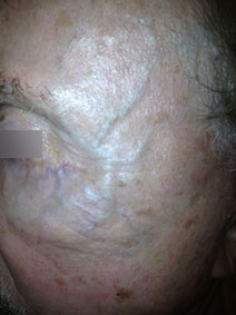 Naples Florida Vanish Vein and Laser Center Facial Vein Treatment Picture