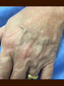 Hand Vein Treatment with filler on male patient - Vanish Vein and Laser Center Naples Florida