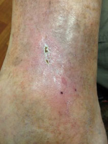 Venous Stasis Ulcer Treatment Vanish Vein Treats