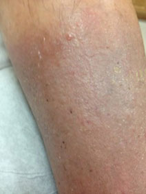Venous Stasis Ulcer Treatment Picture Vanish Vein Naples Florida