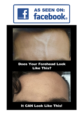Vanish Vein and Laser Center Naples Florida Facebook Forehead Vein Treatment Before and After Image