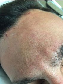 Vanish Vein and Laser Center Naples Florida Forehead Vein Treatment Picture