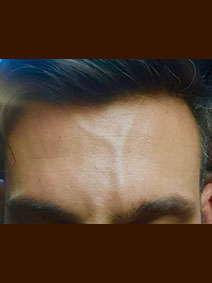 Forehead Vein Treatment Picture Vanish Vein and Laser Center Naples Florida