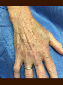 Naples Vanish Vein and Laser Center Hand Vein Treatment Pictures