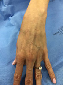 Hand Vein Treatment Picture Vanish Vein and Laser Center Naples Florida