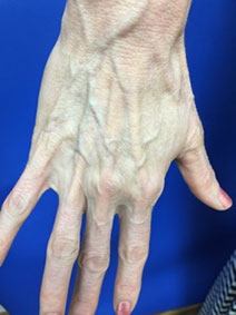Vanish Vein Laser Center Hand Vein Treatment Picture