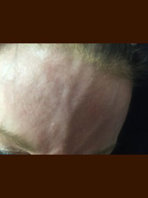 Face Forehead Vein Treatment Picture Vanish Vein and Laser Center Naples Florida