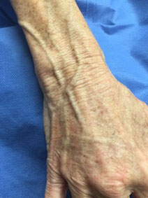 Vanish Vein Naples Hand Varicose Vein Treatment