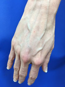 Vanish Vein and Laser Center Naples Florida Hand Vein Treatment