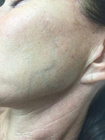 Facial Veins Treatment by Vanish Vein and Laser Center Naples Florida