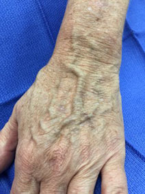 Unsightly Hand Veins Treatment by Vanish Vein and Laser Center Naples Florida