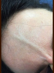 Before and After Forehead Veins Sclerotherapy Treatment Vanish Vein Naples Florida