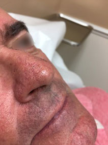 Vanish Vein and Laser Center Nasal Veins treatment Before and After Pic