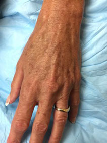 Vanish Vein and Laser Center Naples Treats Hand Veins