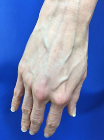 Hand Vein Treatment Naples Florida Vanish Vein and Laser Center
