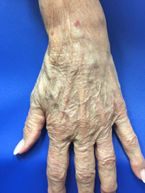 Naples Florida Hand Vein Treatment Before and After Pictures