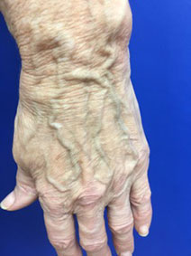 Hand Vein Laser Treatment Naples Florida Vanish Vein