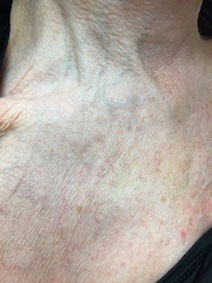 Chest area varicose vein treatment results picture vanish vein naples florida