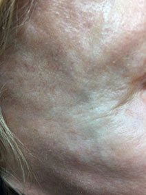 Forehead varicose vein remove results picture naples florida
