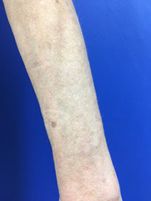 Arm Varicose Vein Removal by Vanish Vein and Laser Center Naples Florida