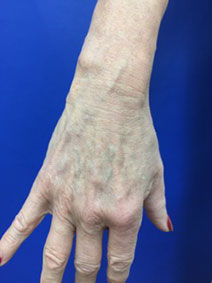 Naples Florida Vanish Vein and Laser Hand Vein Removal Before and After Image